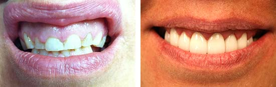 Esthetic Crown Lengthening Before and After Results